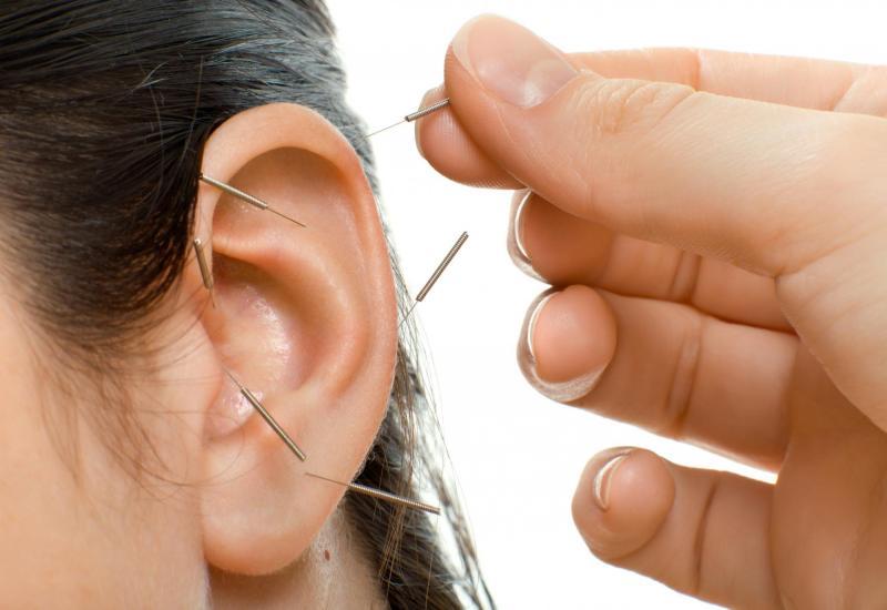 Akupunktur Hellmuth
